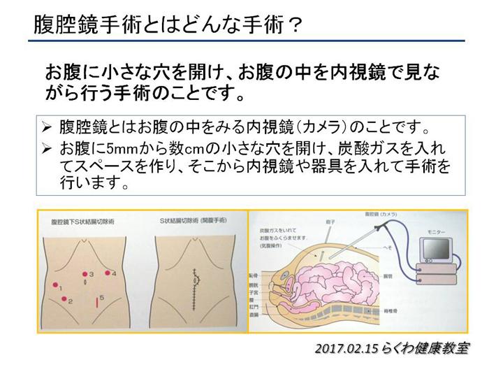 大腸 が ん 内 視 鏡 手術