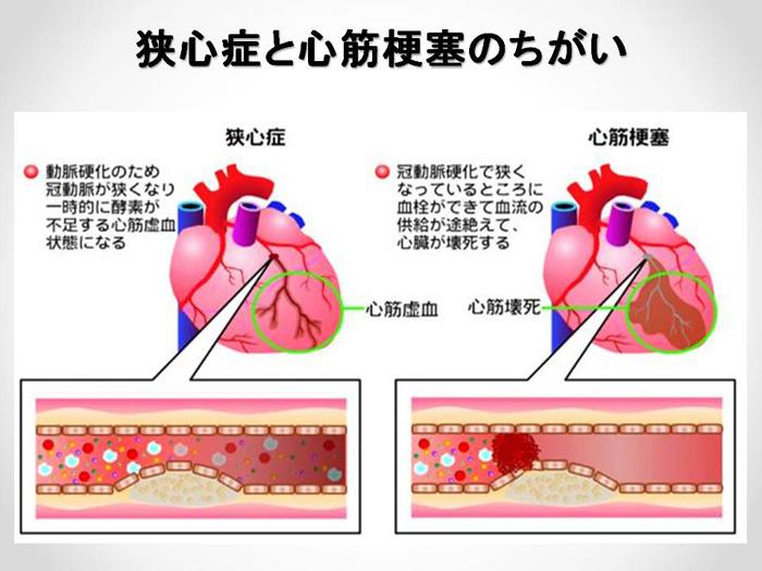 5.狭心症の心電図変化|誰でも分かる「心電図の簡 …